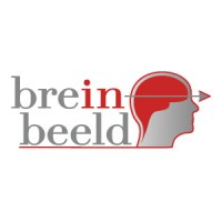 Super Brein in Beeld | LinkedIn CT-92